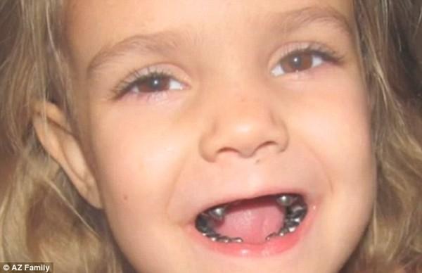 """Những hàm răng kỳ lạ nhất """"quả đất"""" 7"""