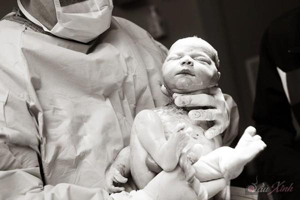 Thú vị với chùm ảnh em bé trong những ca mổ lấy thai 20