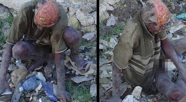 Sốc với hình ảnh thây ma vô hồn ở Haiti 1