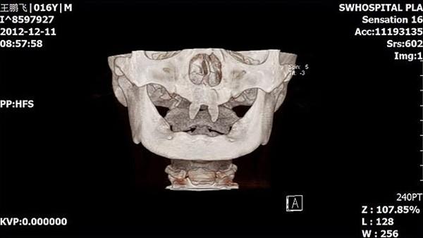 """Những hàm răng kỳ lạ nhất """"quả đất"""" 6"""