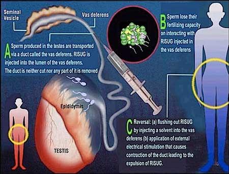 Vasalgel có nguyên tắc hoạt động tương tự RISUG, một loại thuốc tiêm tránh thai khác đang được phát triển. Ảnh: CCTV
