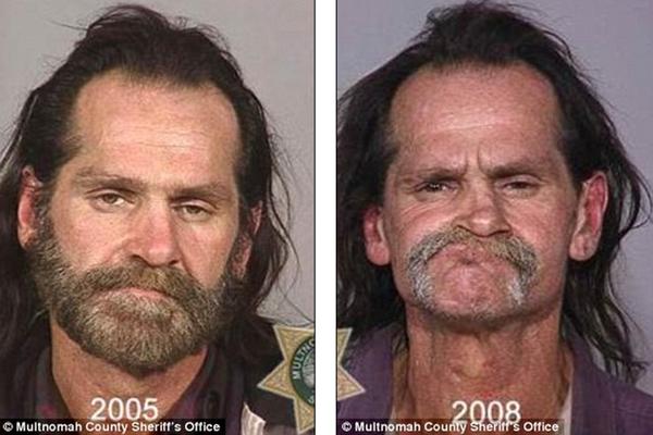 Loạt ảnh đáng sợ về sự tàn phá của ma túy trên khuôn mặt người 5