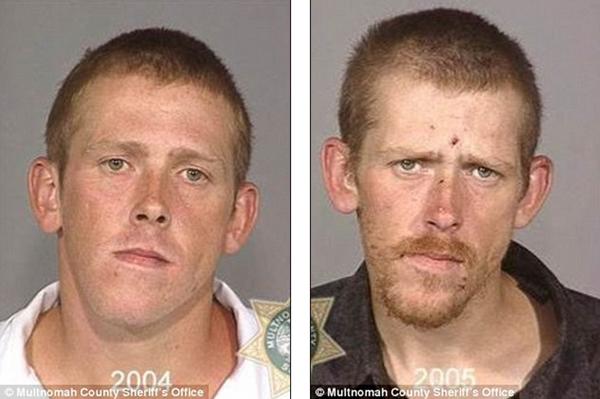 Loạt ảnh đáng sợ về sự tàn phá của ma túy trên khuôn mặt người 2