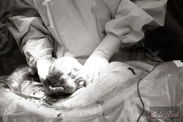 Thú vị với chùm ảnh em bé trong những ca mổ lấy thai 22