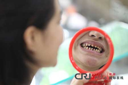 """Những hàm răng kỳ lạ nhất """"quả đất"""" 2"""