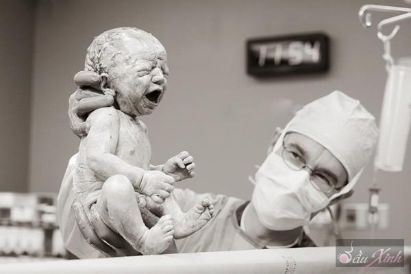 Thú vị với chùm ảnh em bé trong những ca mổ lấy thai 23
