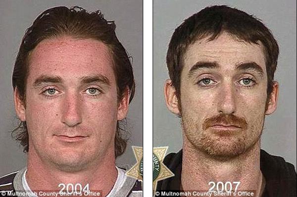 Loạt ảnh đáng sợ về sự tàn phá của ma túy trên khuôn mặt người 8