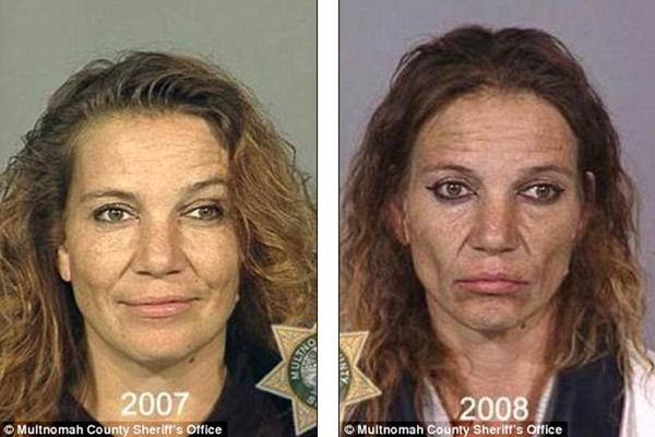 Loạt ảnh đáng sợ về sự tàn phá của ma túy trên khuôn mặt người 9