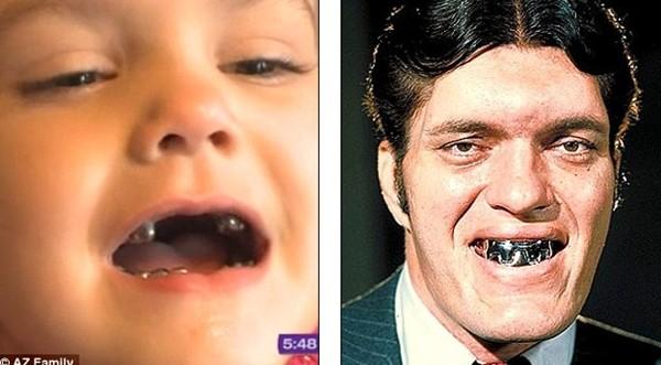 """Những hàm răng kỳ lạ nhất """"quả đất"""" 9"""