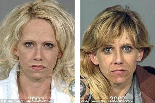 Loạt ảnh đáng sợ về sự tàn phá của ma túy trên khuôn mặt người 6