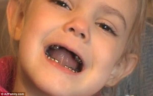 """Những hàm răng kỳ lạ nhất """"quả đất"""" 10"""