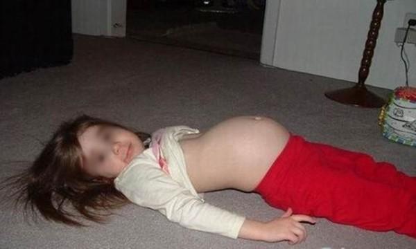 Bé gái 11 tuổi mang thai 8 tháng gia đình mới biết 1