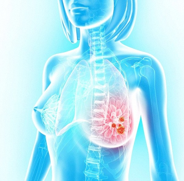 Phát hiện vượt bậc giúp điều trị bệnh ung thư vú hiệu quả hơn 1