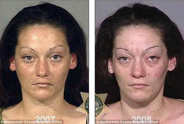 Loạt ảnh đáng sợ về sự tàn phá của ma túy trên khuôn mặt người 1