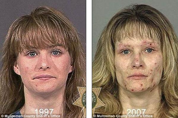 Loạt ảnh đáng sợ về sự tàn phá của ma túy trên khuôn mặt người 3