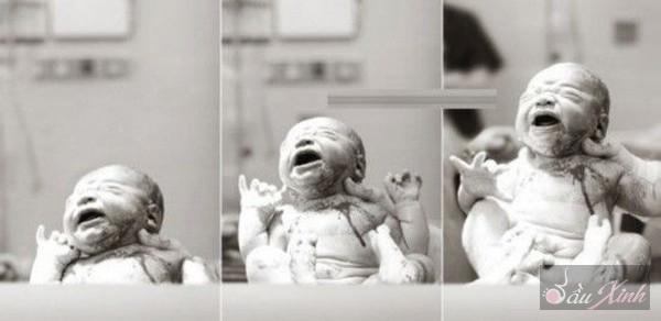 Thú vị với chùm ảnh em bé trong những ca mổ lấy thai 7