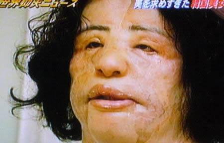 10 thảm hoạ phẫu thuật thẩm mỹ tồi tệ nhất trong lịch sử