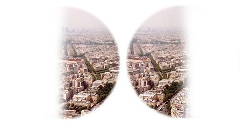 Hình ảnh xuất hiện trên võng mạc còn bị chia làm hai nửa và bị biến dạng